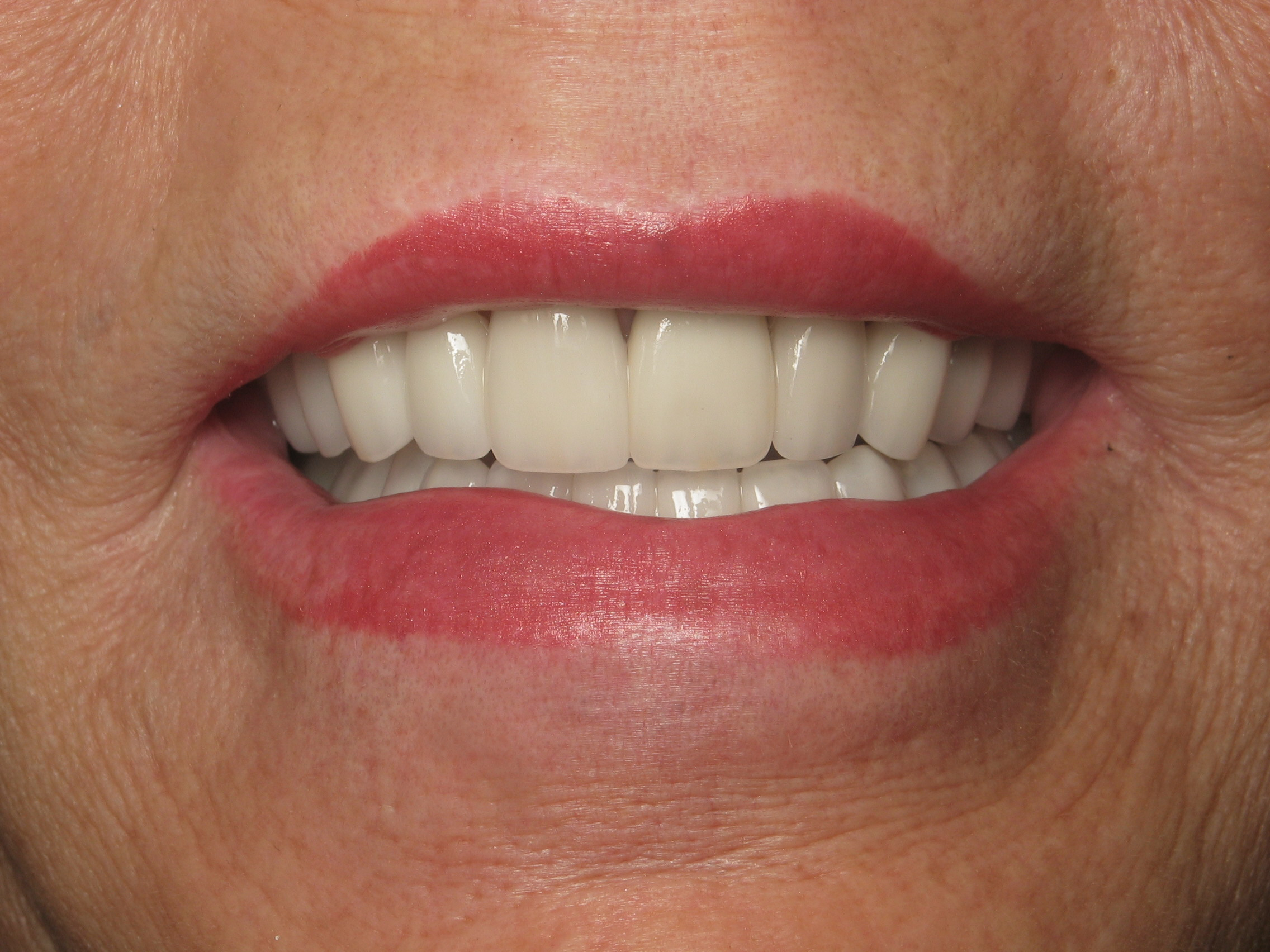 Before and After Smile Gallery at White Wolf Dental