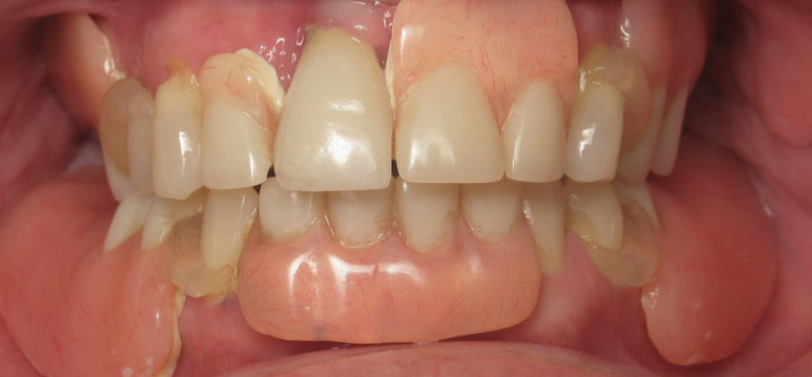 This patient was unhappy with her old nylon partial dentures before coming to White Wolf looking for new implant dentures.