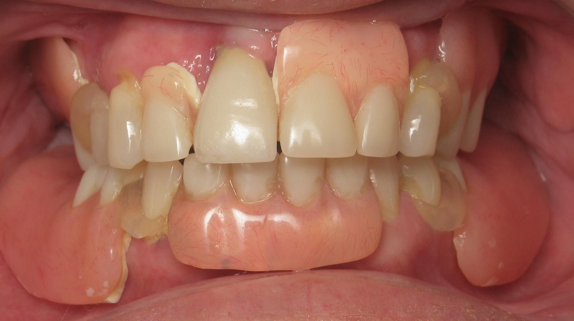 Ms. Smith's old nylon dentures