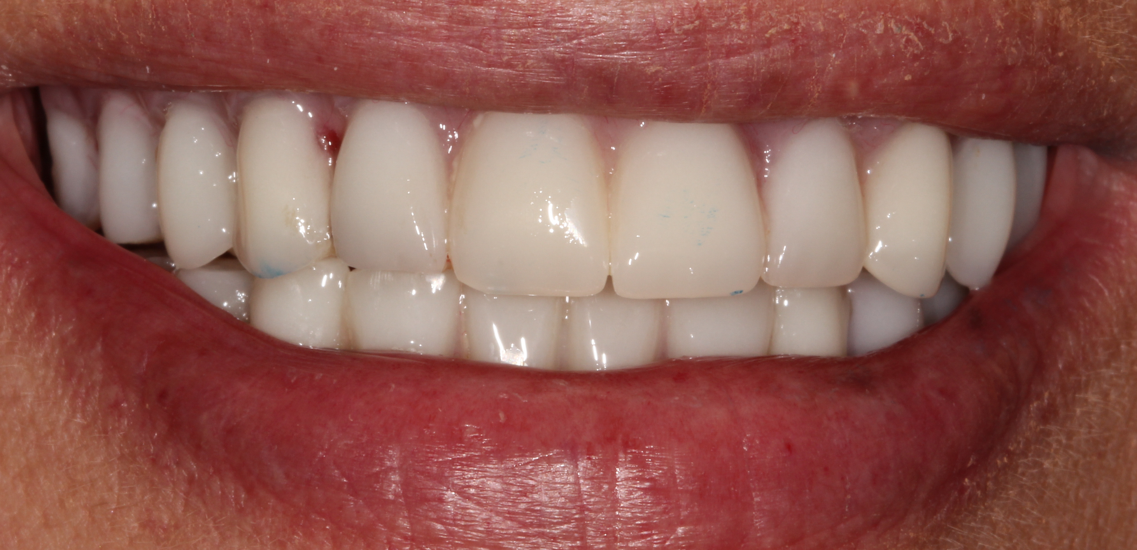 Ms Smith's temporary implant dentures