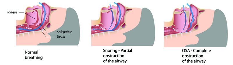 Obstructive Sleep Apnea compared to snoring and normal breathing