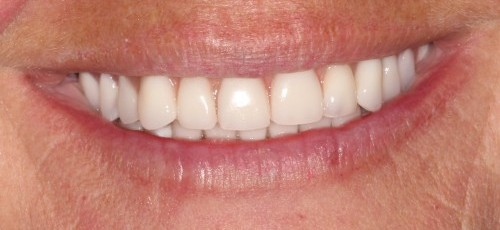 After New Teeth in Just One Day