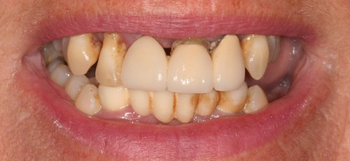 Before New Teeth in Just One Day