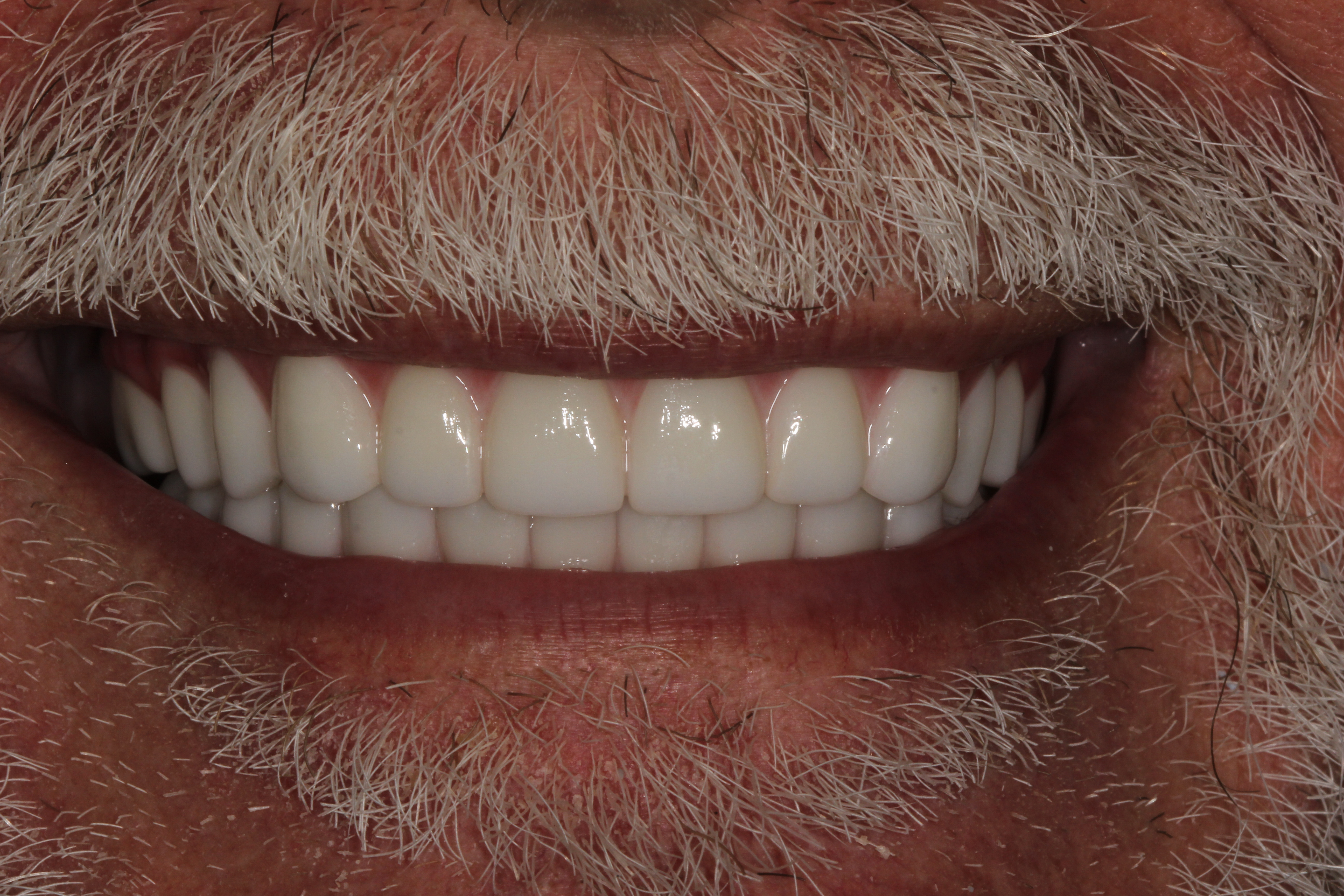 After New Teeth In Just a Day implant dentures from White Wolf Dental in Port Orange, FL