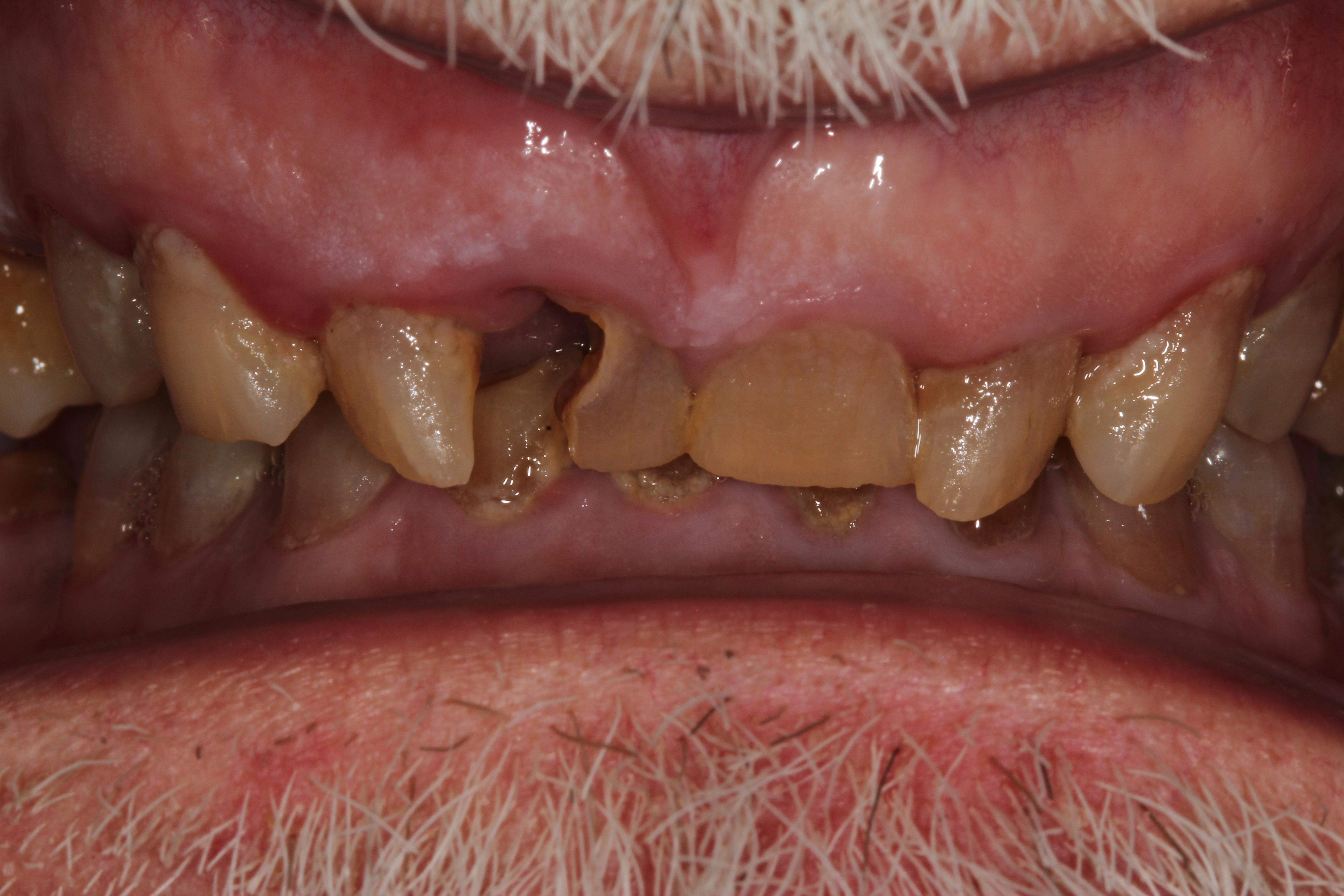 Before White Wolf Dental implant dentures