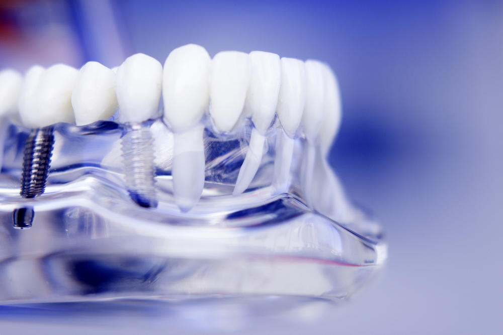 advanced implant dental technology