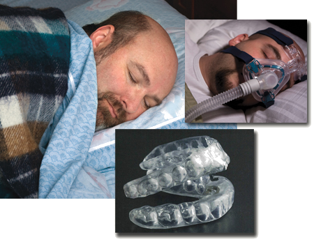 Oral appliance therapy can help treat snoring and apnea in some patients
