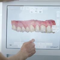 Advanced 3D modeling of White Wolf Digital Dentures