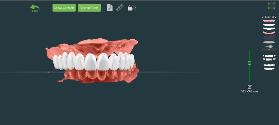 Digital Dentures from White Wolf Dental in Port Orange, FL